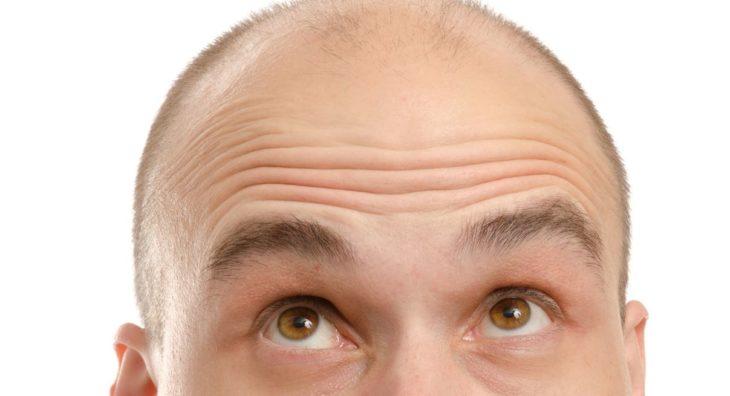 personne chauve